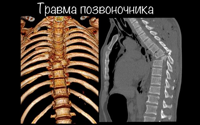 Компьютерная томография в донецке